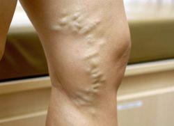 Bolący ból w nogach powoduje