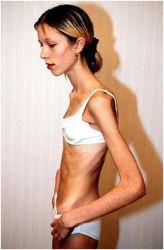 znakovi anoreksije