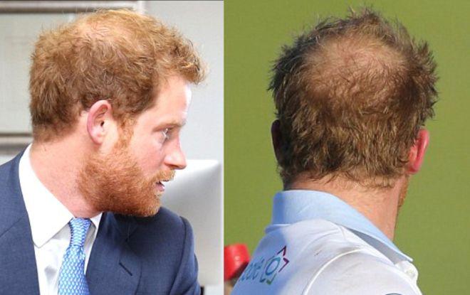 У принца Гарри генетическая алопеция