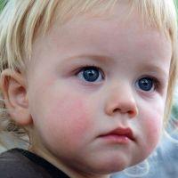 dijete atopijski dermatitis kod djece