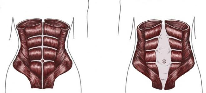 diastaza mięśni brzucha po porodzie
