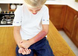 lijek za opekline za djecu