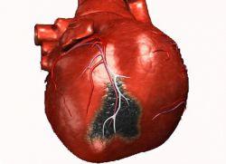 pravi kardiogeni šok