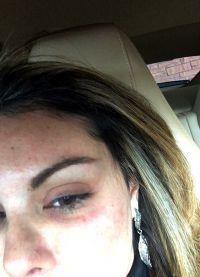 Исполнитель ударил ее кулаком в глаз