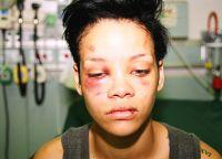 Так выглядела Рианна после избиения
