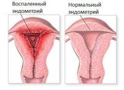 Przewlekłe leczenie endometryczne i ciąża