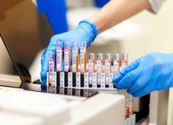 резултати клиничког транскрипта теста крви