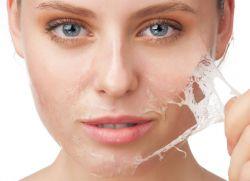 Liječenje zatvorenih lica komedosa