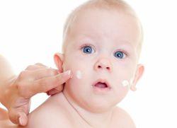 liječenje alergijskog dermatitisa kod djece