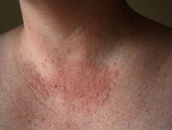 Виды болезней кожи