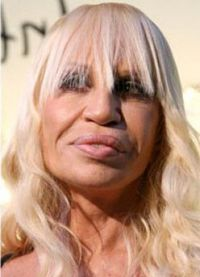 Donatella Versace prije i poslije 11