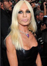 Donatella Versace prije i poslije 12