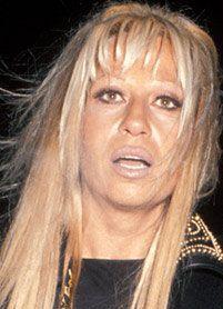 Donatella Versace prije i poslije 3