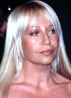 Donatella Versace prije i poslije 5