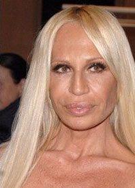 Donatella Versace prije i poslije 9