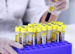 Testy hormonalne kobiet