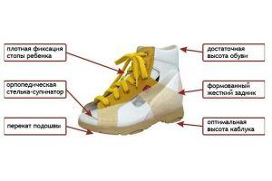 ravni stopalo u stopalima u djece 2