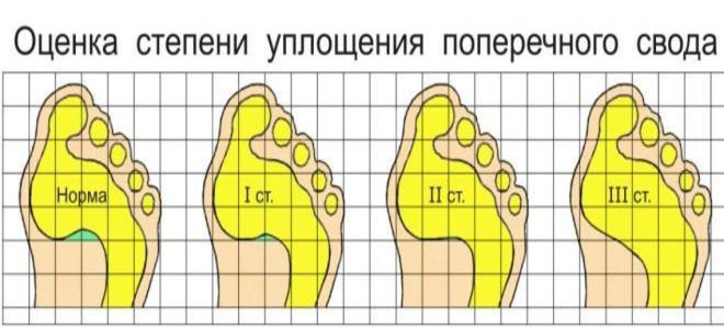 поперечное плоскостопие у детей