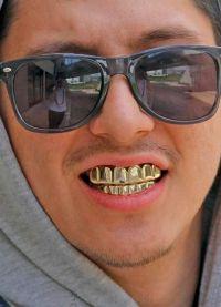 Grilza na zubima5