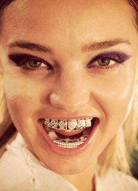 Grilza na zubima7
