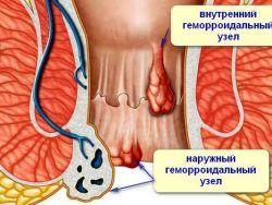 vanjske hemoroide tijekom trudnoće