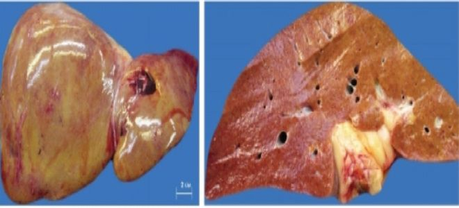 что такое гепатомегалия