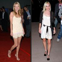 ofiary anoreksji