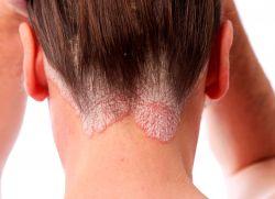 owrzodzenie skóry głowy jak leczyć