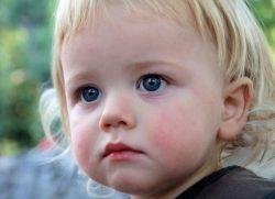 Как да се лекува диатезата при дете