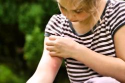 kot za zdravljenje ugriza komarjev pri otroku
