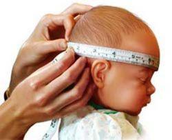 leczenie wodogłowia u noworodków