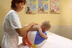 хипотонија код новорођенчади