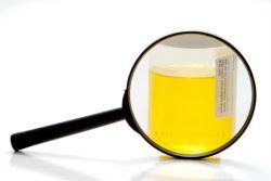 povećane bijele krvne stanice u urinu djeteta