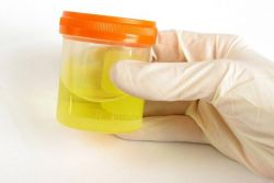 bijele krvne stanice u urinu djeteta su povećani uzroci