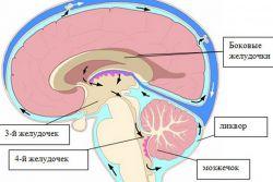 nadciśnienie mózgu