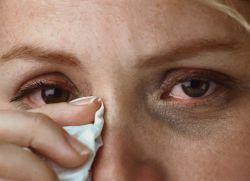 Rozerwanie oczu w starszym wieku