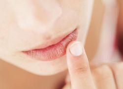 prvi simptomi raka usana