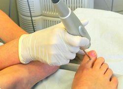 zdravljenje nohtne glivice na nogah