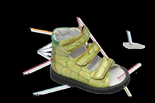 ortopedska obuća za djecu s deformacijom valgusa 1