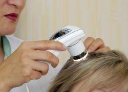 leczenie włosów ozonoterapią