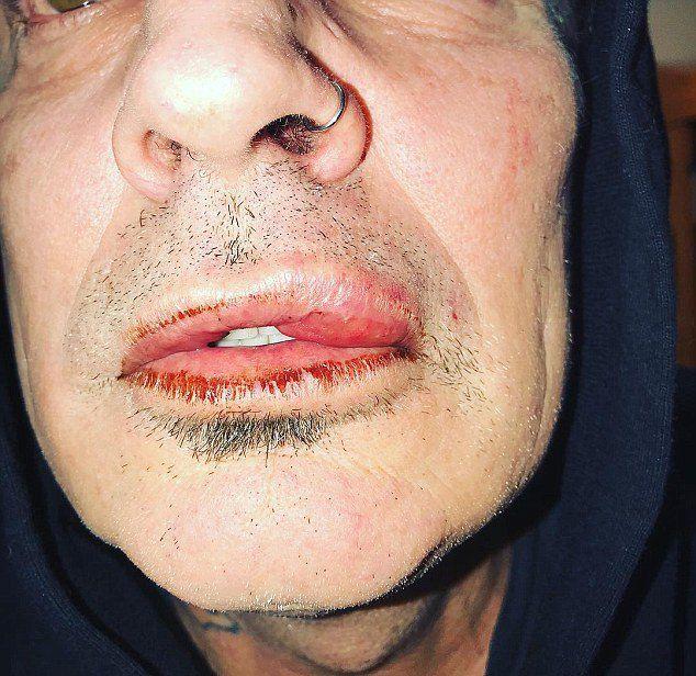Фото Томми Ли с разбитой губой