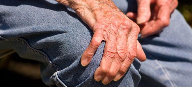 болезнь  Паркинсона акинетико-ригидная форма