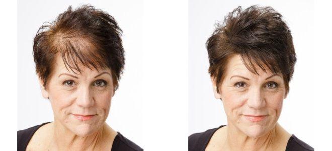 Плазмолифтинг для роста волос до после