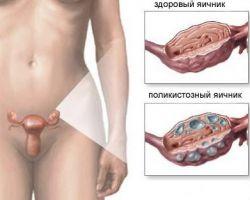Возможна ли беременность при поликистозе