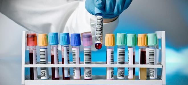 Nosečnost test krvi