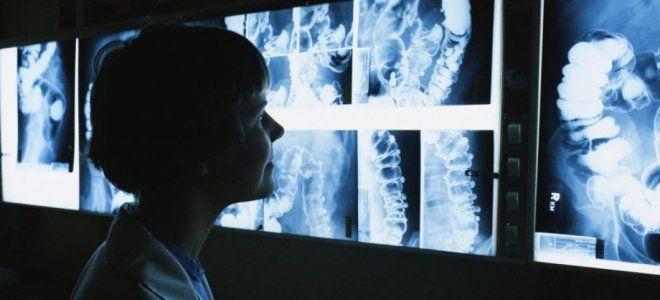 Причины появления лучевой болезни