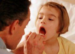 kako vidjeti dječje grlo