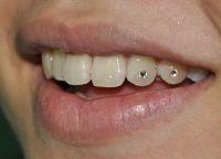 rhinestones na zubech 9