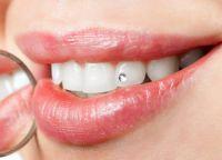 skyce na zębie 1