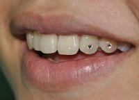 skyce na zębie 2